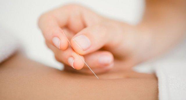 Akupunktura(3)