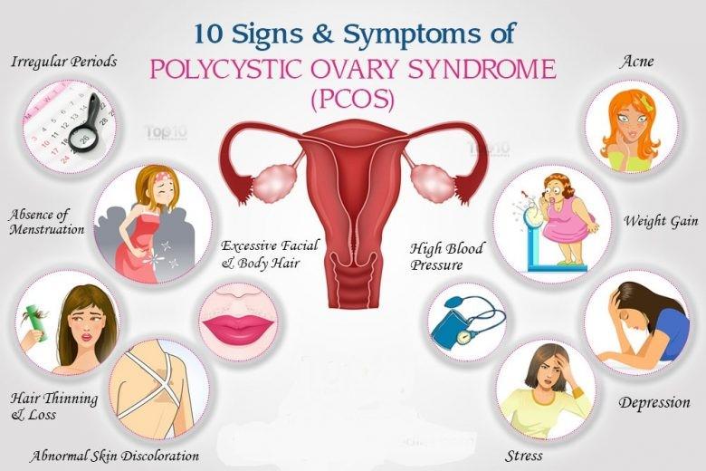 10 simptoma PCOS-a