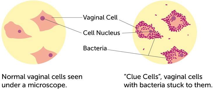 Dijagnoza bakterijske vaginoze