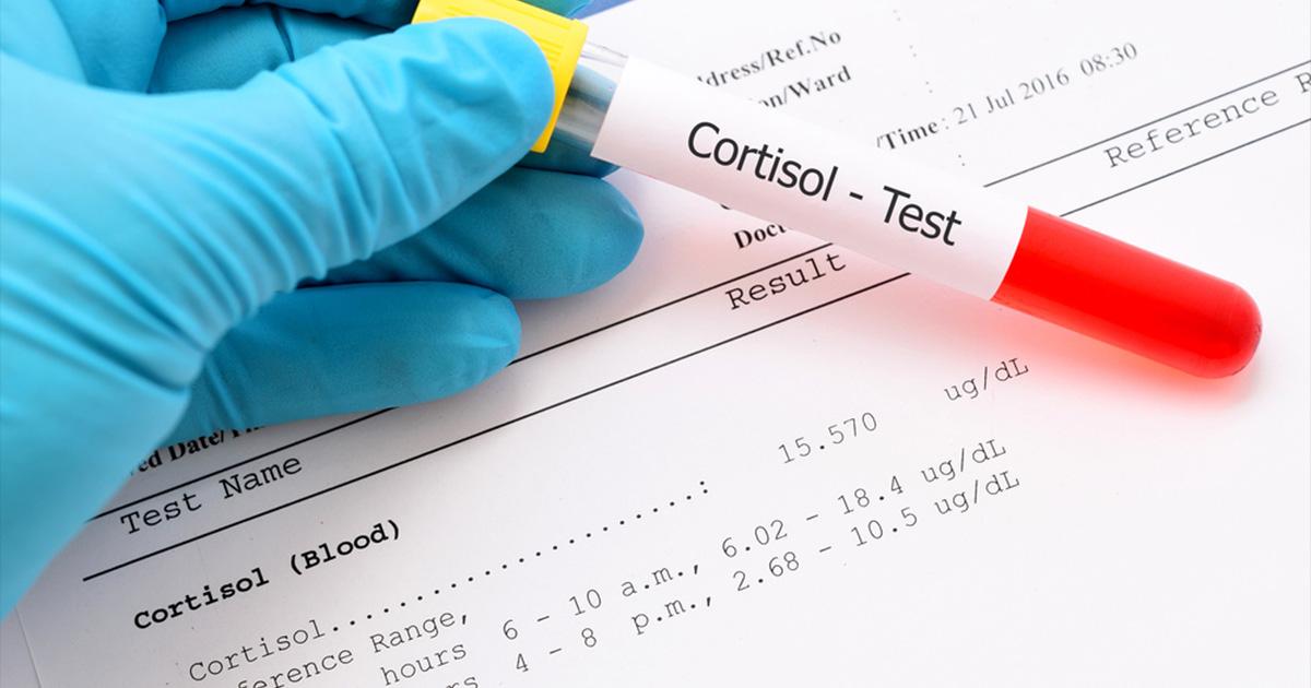 Povezanost hormona i stresa - kortizol