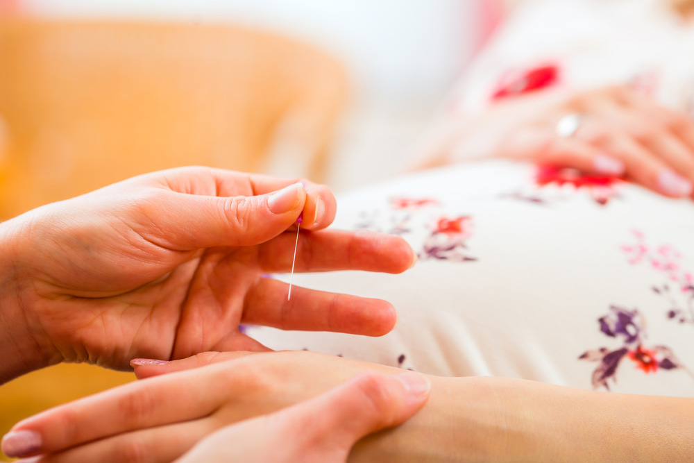 Akupunktura u trudnoći