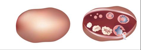 Normalni jajnici