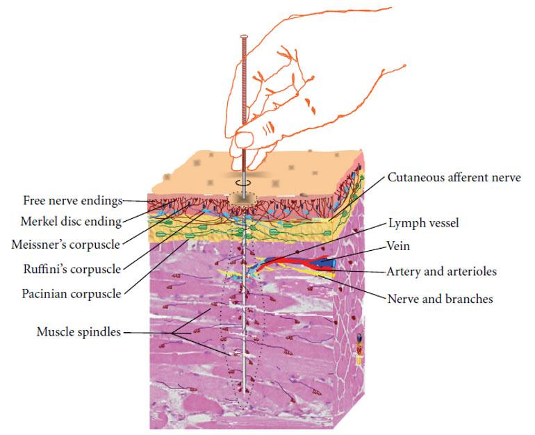 Djelovanje akupunkture
